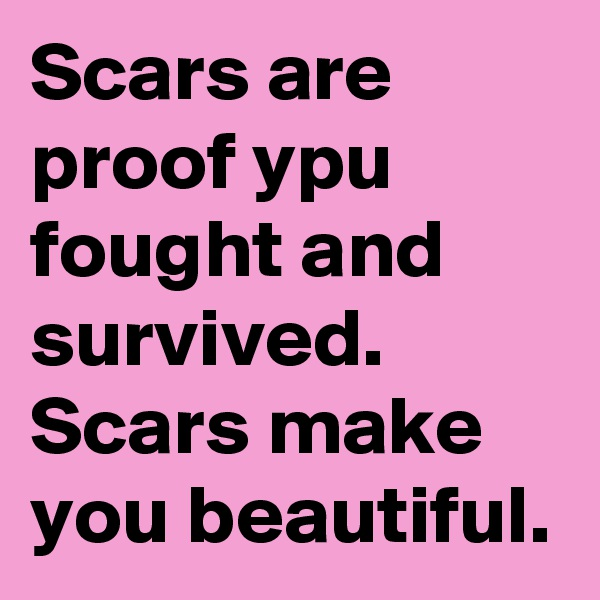 Scars are proof ypu fought and survived. Scars make you beautiful.